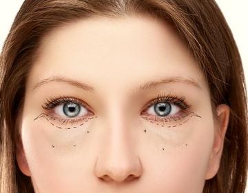 Быстро убрать морщины под глазами в домашних условиях 29