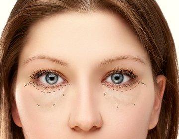 Image result for Что делать, если вы проснулись с темными кругами под глазами