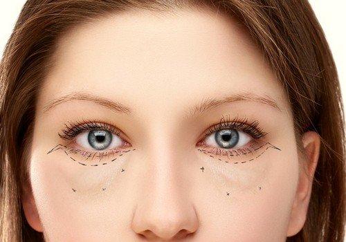 Как выявить причину и избавиться от мешков под глазами в домашних условиях