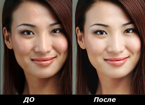 Желтый ретиноевый пилинг для лица, плюсы и минусы данной процедуры