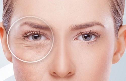 Как убрать морщины вокруг глаз и предотвратить их появление при помощи натуральных средств