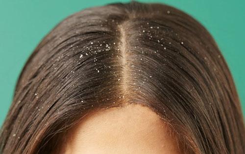 Как избавиться от перхоти на голове, почему она появляется и как правильно и эффективно ее лечить