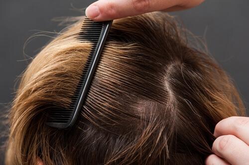 Почему волосы быстро становятся жирными, основные причины этого процесса и способы борьбы с жирностью